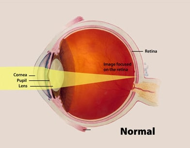 Image courtesy of National Eye Institute