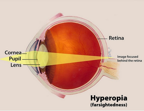 Image courtesy of the National Eye Institute